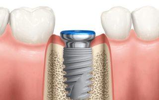 Azonnali implantáció az extrakciót követően - Dr. Riedling Zsolt fogszakorvos - Medicina Klinika Hévíz Ady Endre utca 5