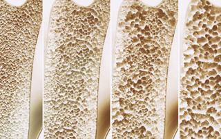 Csontrikulás - osteoporosis - kezelése és fogászati implantátum - Medicinaklinika Hévíz.